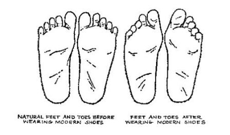 Foot Shape Change - sm